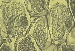 兰花的微小的种子和共生菌根